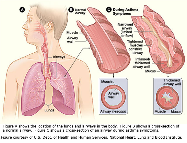Asthma Chronic Disease Prevention Health Promotion Division
