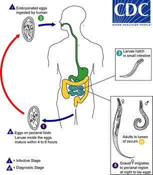 ha pinworms jön ki csiga parazita