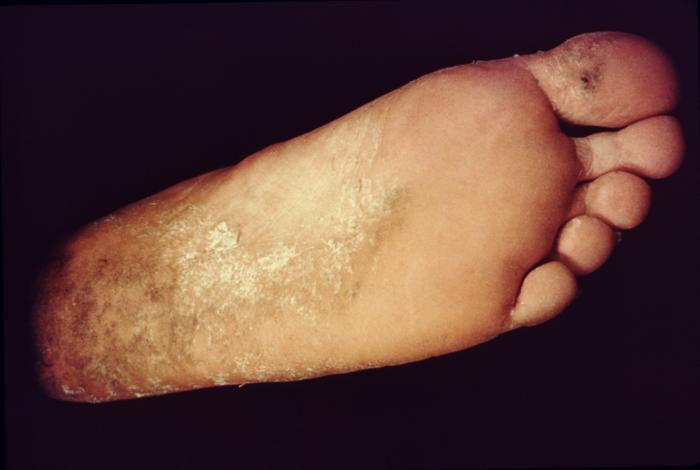 Disease Outbreak Control Division | Ringworm