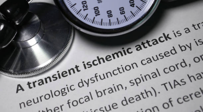 Transient Ischemic Attack illustration